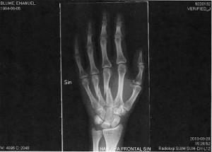 Trasig-hand2